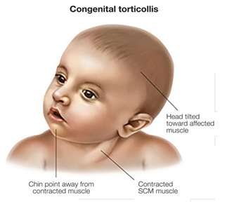 The three main aspects of congenital torticollis paediatric physiotherapists correct - Head tilted toward the affected side, chin pointing away from the contracted muscle, and contracted SCM muscle.
