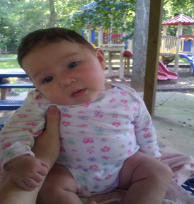 Infant with head tilted to the left side
