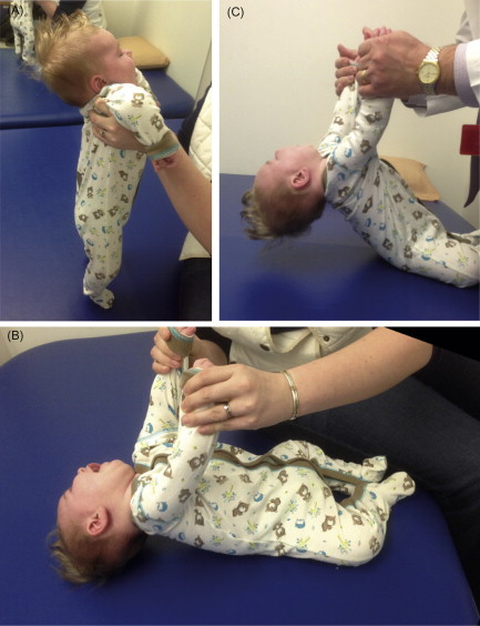 The 3 most obvious signs of low muscle tone in infants