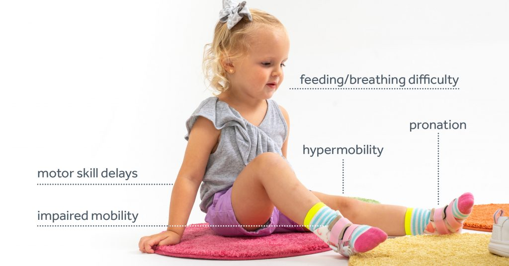 The impacts of hypotonia in paediatric physiotherapy patients