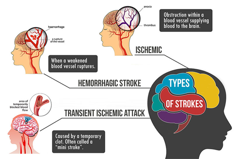 Infographic on the 3 types of strokes - Ischemic, Hemorrhagic & Transient Ischemic Attack